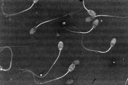 golovka-spermatozoida-patologiya