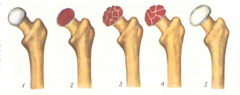 Некроз головки бедренной кости