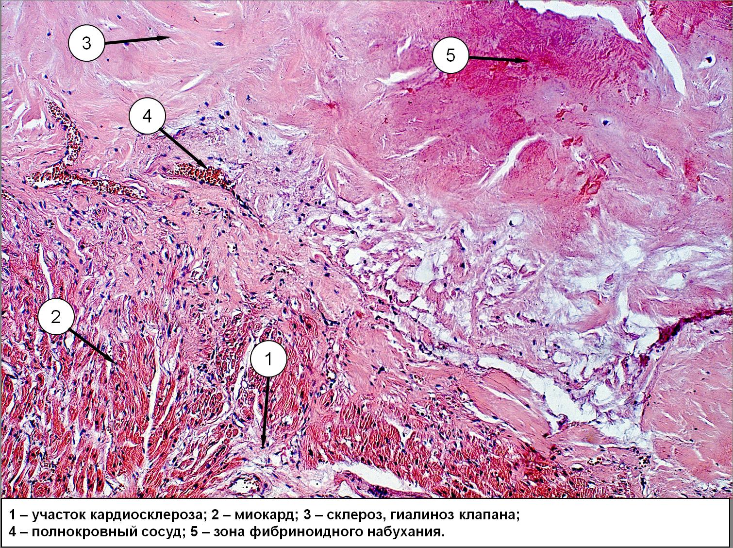 Фибринокиназа