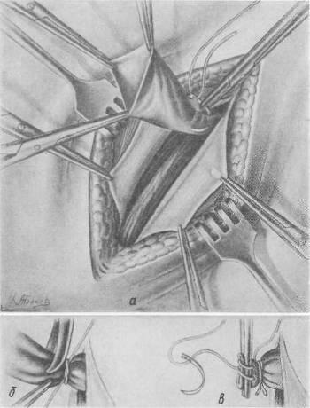 Операция паховой грыжи в самаре