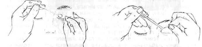 2. Методы исследования анатомического состояния органа зрения - Заболевания и повреждения органа зрения