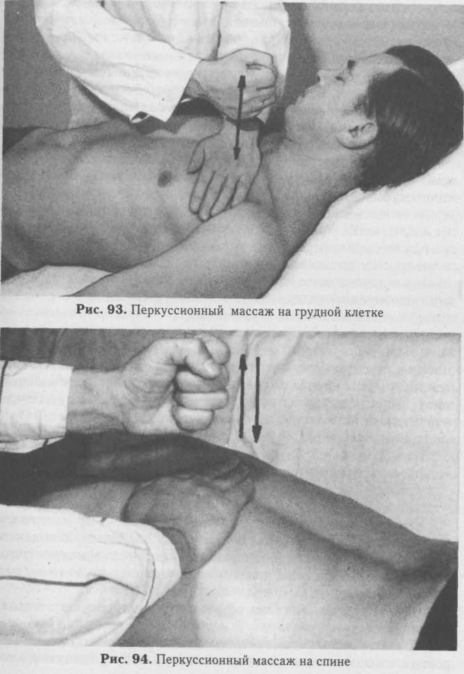 Приемы массажа при пневмонии у