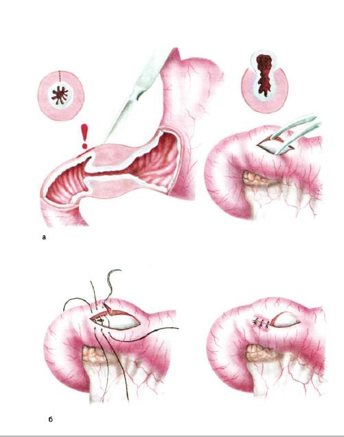 Пилороспазм
