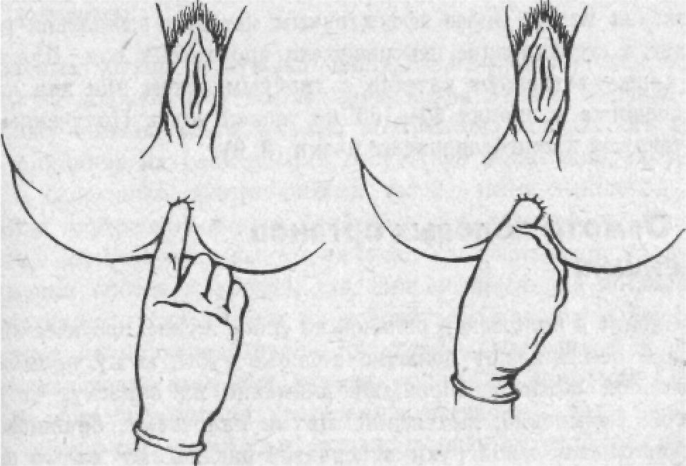 Склеродермия Кольцевидная фото