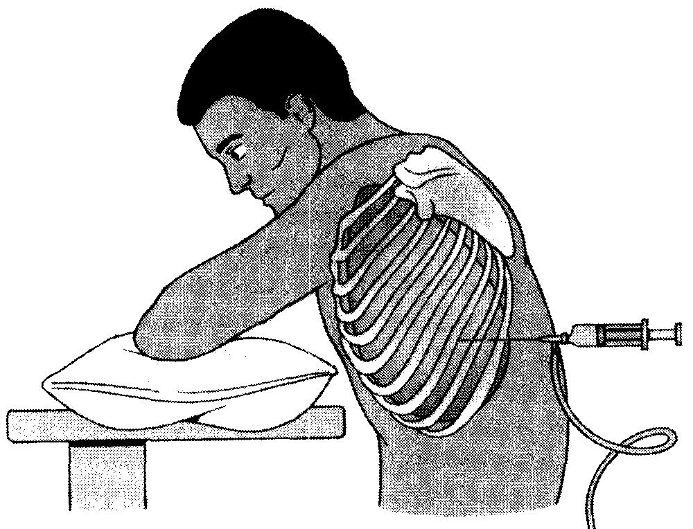 Торакоцентез