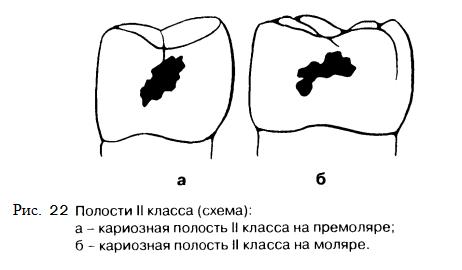 Препарирование Зубов Под Вкладки Учебник