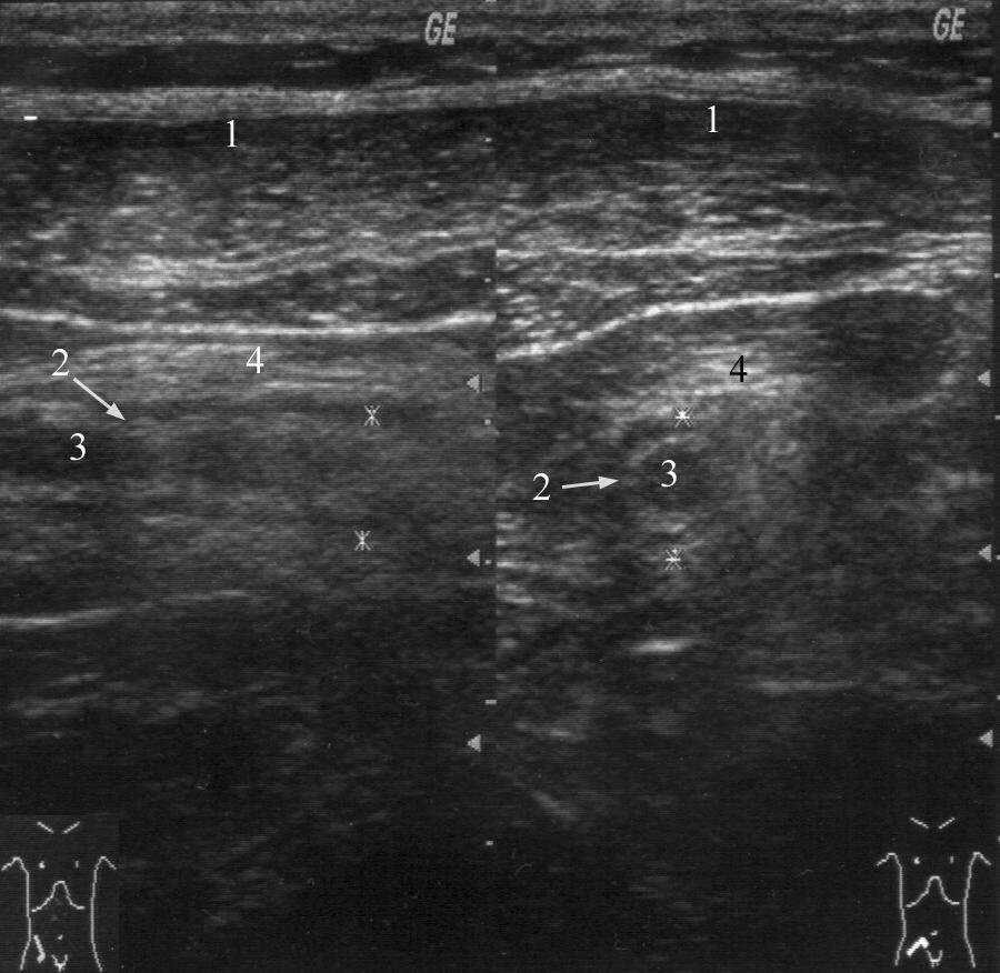 Перфорация отростка с развитием диффузного или разлитого перитонита фото