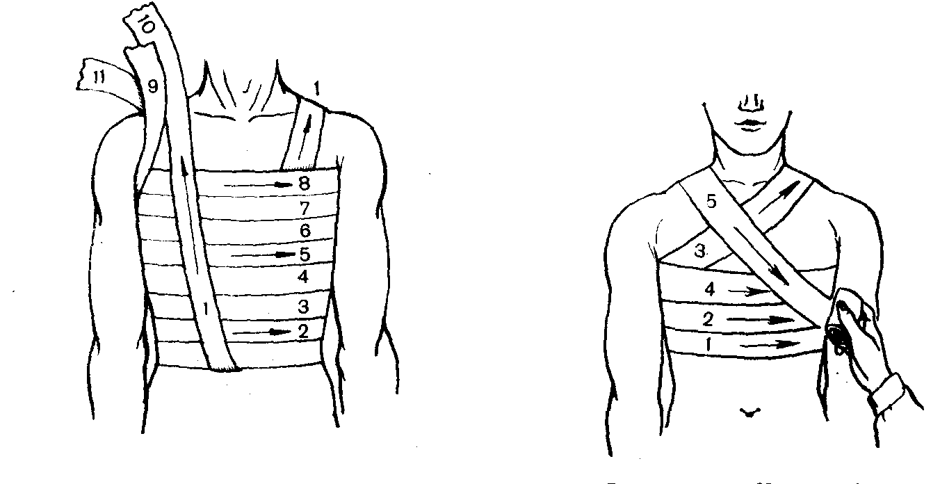 Как сделать повязку на ребрах 93