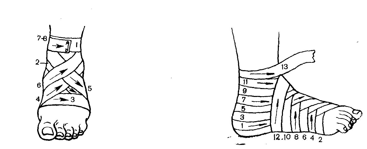 Повязка Колосовидная