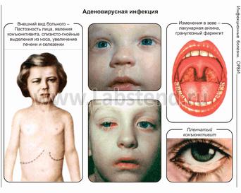 Как лечить контактный дерматит в паху у ребенка