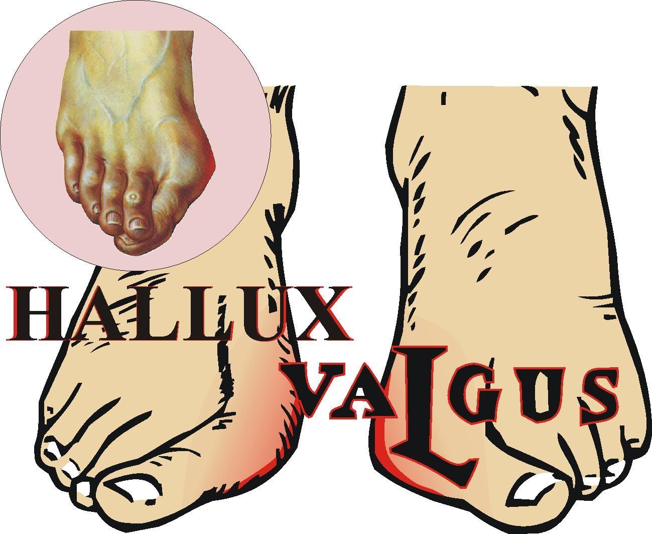 Косточки на ногах причины возникновения и методы лечения